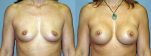 Breast-Augmentation-Round-Silicone-Gel-286cc