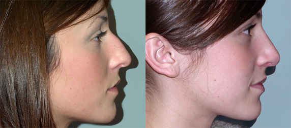 rhinoplasty-before-&-after-RLat