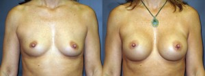 breastAugmentation7