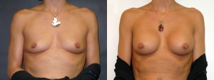 drdembny-191-breast-augmentation-saline-AP