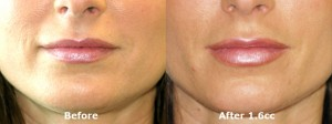 dr-dembny-juvederm-lip-enhancement-215-AP