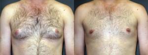 dr-dembny-gynecomastia-surgery-4-AP