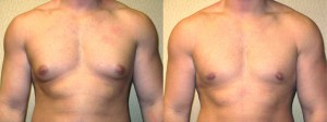 dr-dembny-male-breast-reduction-7-AP