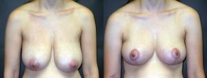 dr-dembny-breast-lift-224-AP