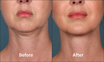 kybella-before-and-after-AP-1-moderate-to-none