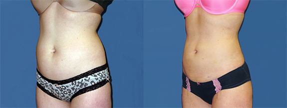 Liposuction-Abdomen-Before_&_After_Dr_Dembny