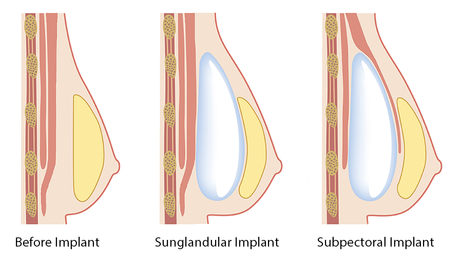 Subglandular-&-Submuscular-Breast-Augmentation-Illustration-Dr-Dembny