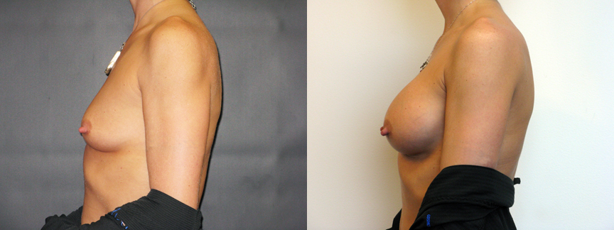 dr dembny-breast_augmentation-saline-191-L Lat