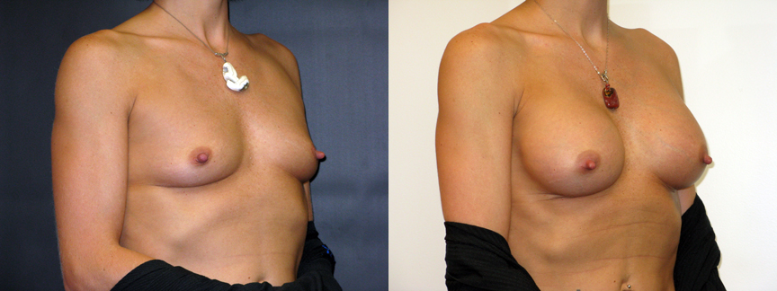 dr dembny-breast_augmentation-saline-191-R Oblq