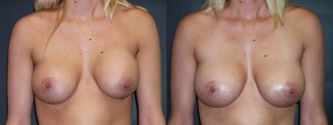 dr-dembny-breast-augmentation-revision-patient-308-AP