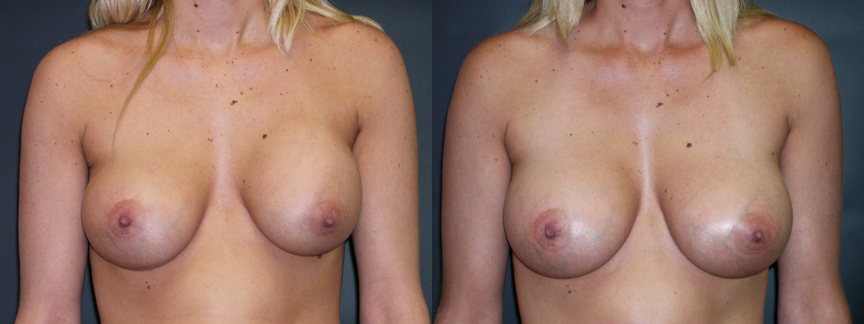 Breast Augmentation Revision for Right Implant Descent & Capsular Contracture - 308 AP