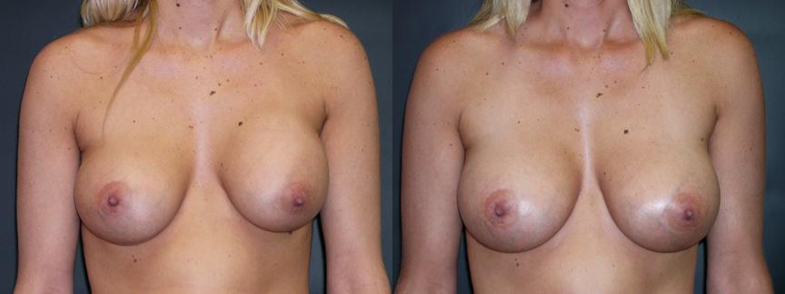 dr-dembny-breast-augmentation-revision-patient-308-AP