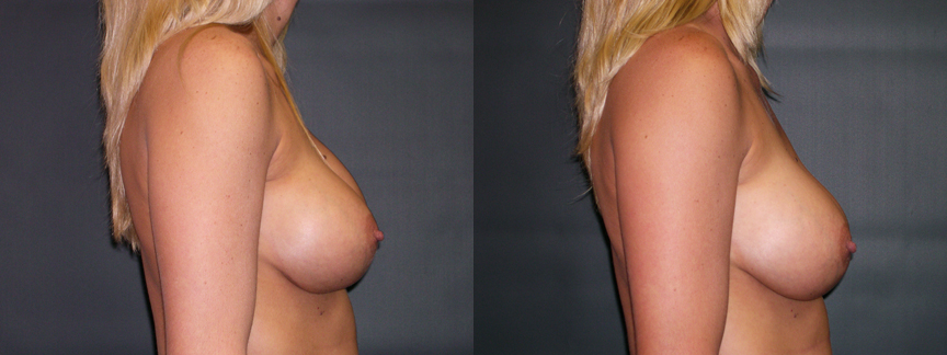 Breast Augmentation Revision for Right Implant Descent & Capsular Contracture - 308 RLat