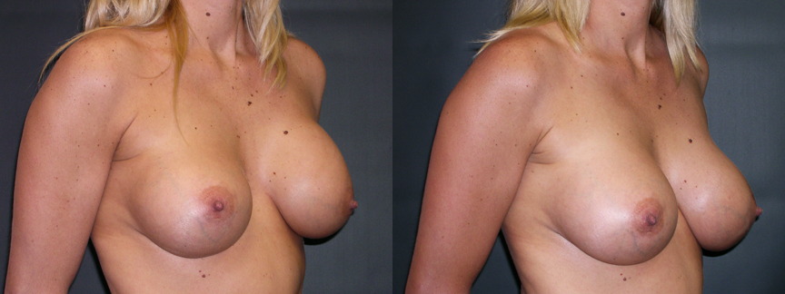 dr-dembny-breast-augmentation-revision-patient-308-ROblq