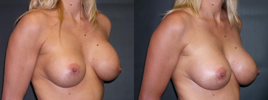 Breast Augmentation Revision for Right Implant Descent & Capsular Contracture - 308 ROblq