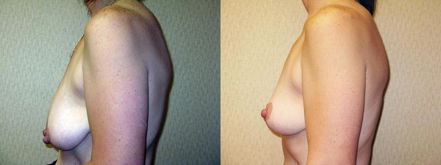 dr dembny-breast_lift-44-LLat