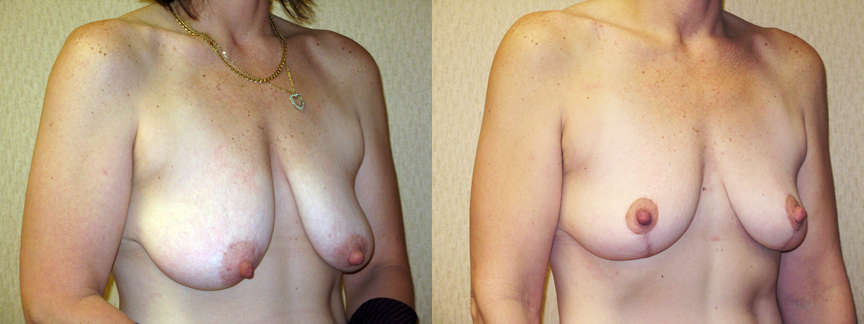 dr dembny-breast_lift-44-ROblq