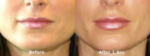 dr-dembny-juvederm-lip-enhancement-215-AP