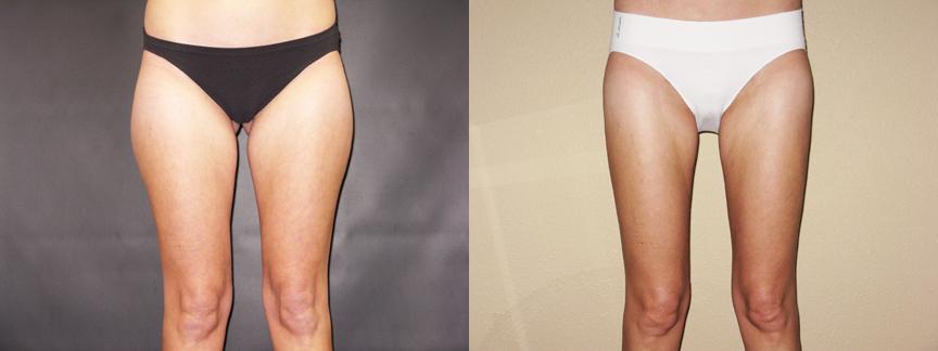 Excess Thigh Fat Despite Exercise – 257