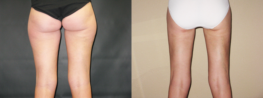 dr dembny-liposuction-thighs-257-posterior