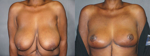 Image of Breast Reduction