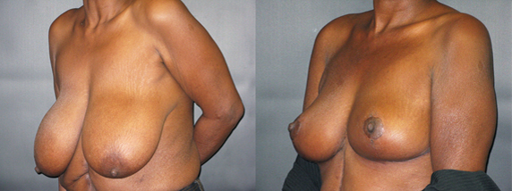 breastReduct5