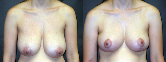Breast Reduction for Drooping & Asymmetry – 224