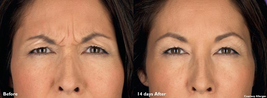 Angela-20U-Botox-Cosmetic-Frown-Lines-B&A