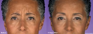 Pamela-20U-Botox-Cosmetic-Frown-Lines-B&A