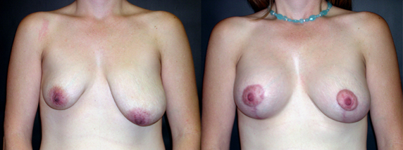 breastAugmentation10