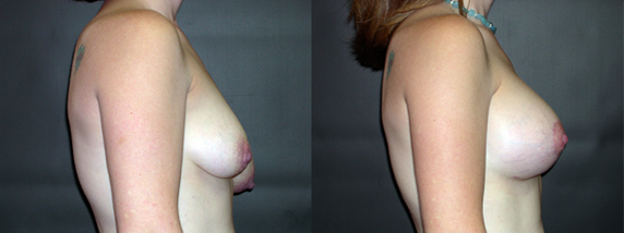 breastAugmentation11