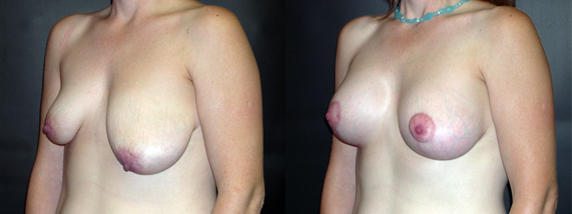 breastAugmentation12