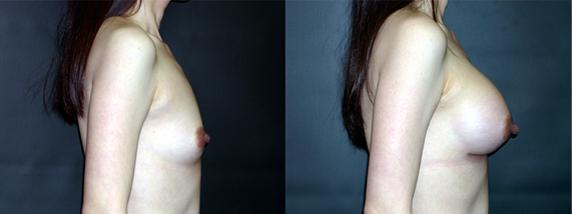 breastAugmentation2