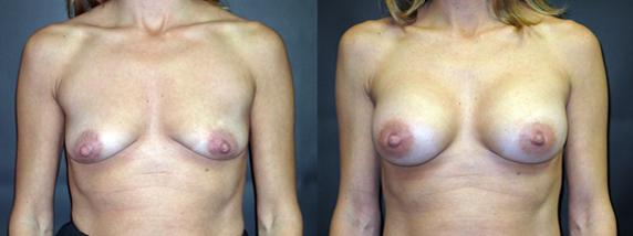breastAugmentation28