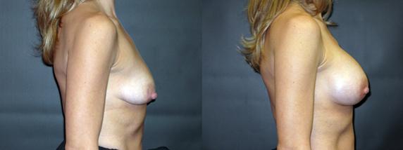 breastAugmentation29