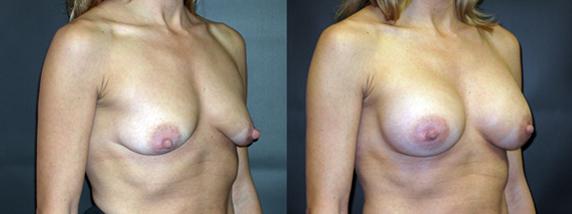 breastAugmentation30