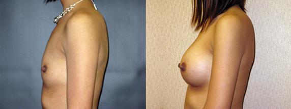 breastAugmentation32