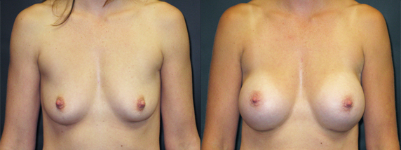 breastAugmentation37