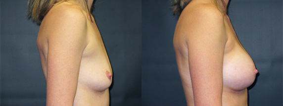 breastAugmentation38