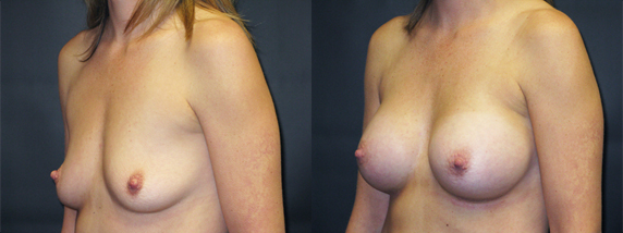 breastAugmentation39