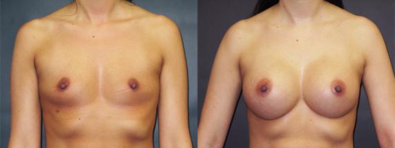 breastAugmentation40