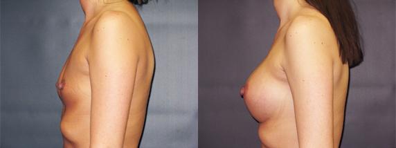 breastAugmentation41