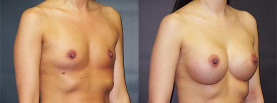 breastAugmentation43