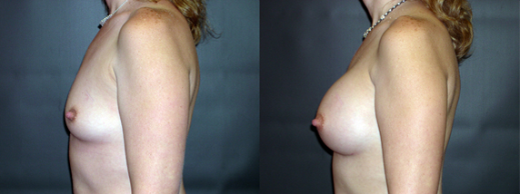 breastAugmentation5