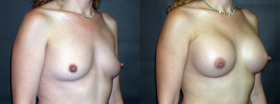 breastAugmentation6