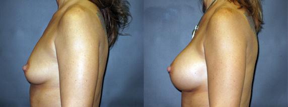 breastAugmentation8