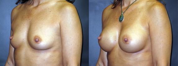 breastAugmentation9