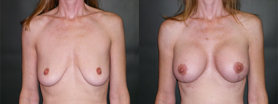 """Significant Breast Deflation… """"I Want My Breasts Back"""" – 40"""