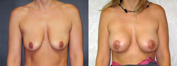 Loss of Breast Fullness & Drooping – 46