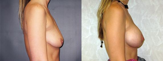 breastLeft46-2